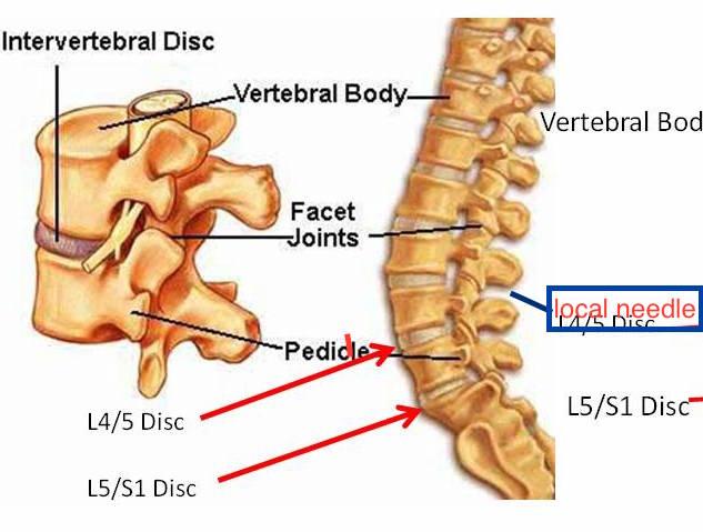 lumbar-spine-ppp